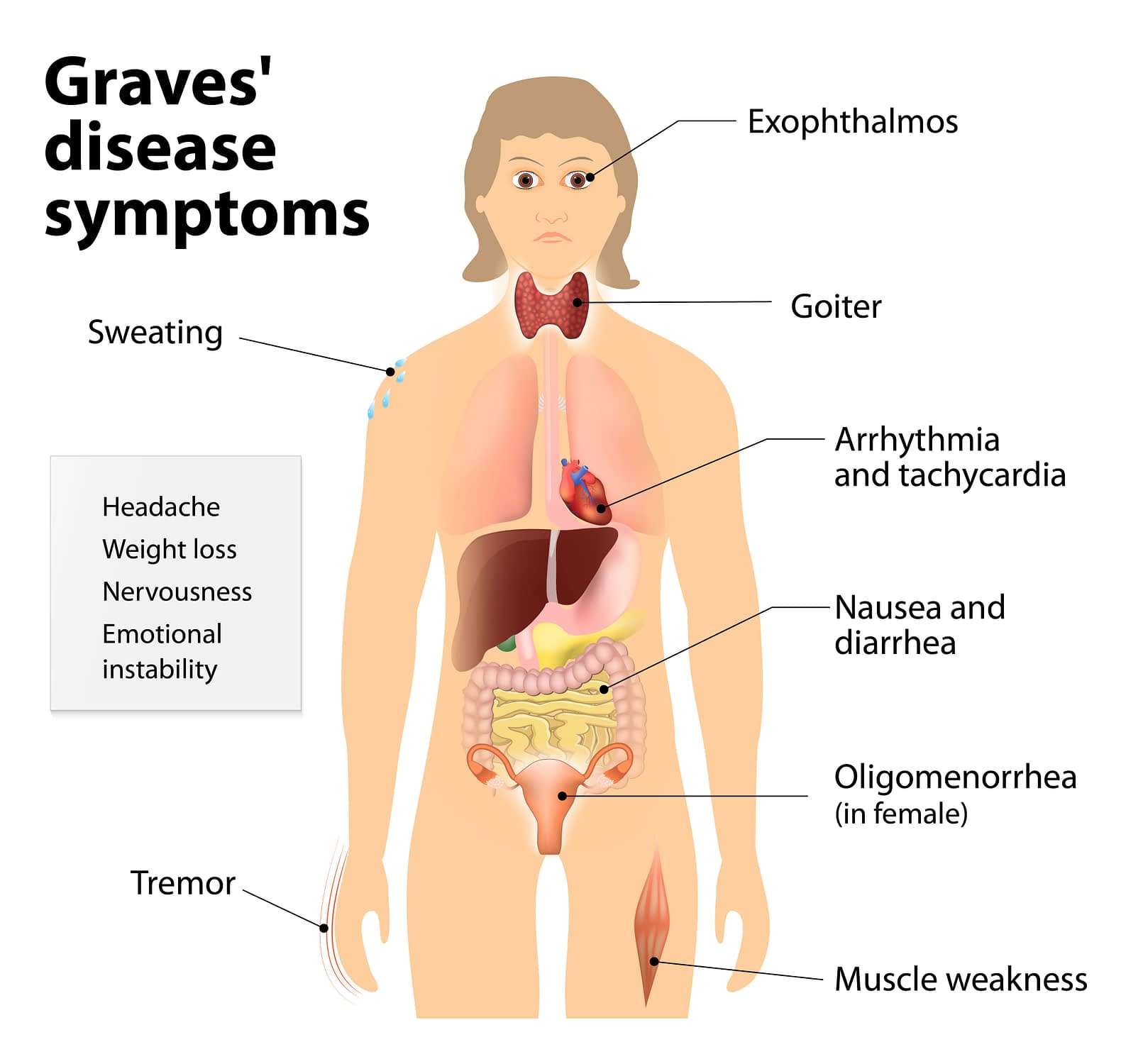 Thyroid Disease Causes Types Tests Treatments And Prevention Ajman Medical Center مركز عجمان الطبي